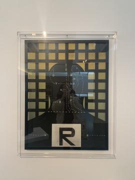 王广义 《黑色理性——病例分析·R》